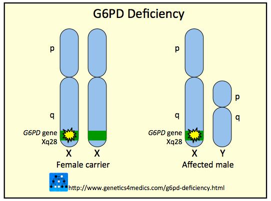 scăderea în greutate a deficienței de g6pd)