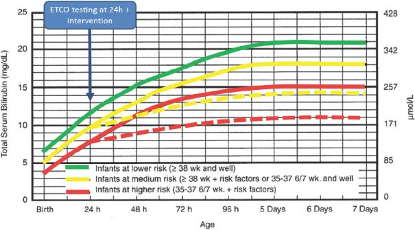 bilirrubina indirecta alta en bebes